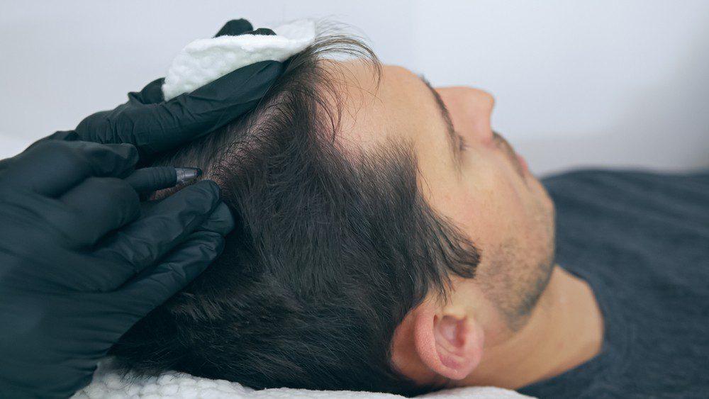 scalp micropigmentation regerts