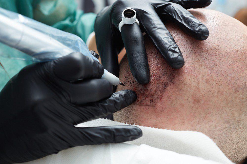 celebrity scalp micropigmentation