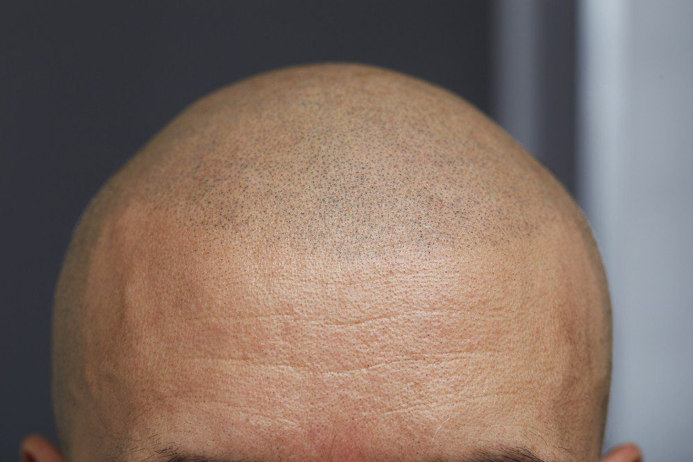 Hair Tattoo for Balding Guys